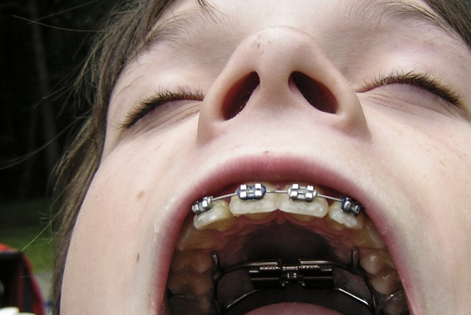 Pay Less For Braces